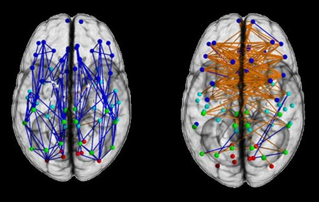 Cérebro Feminino