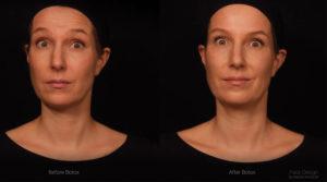 Botóx e expressão facial